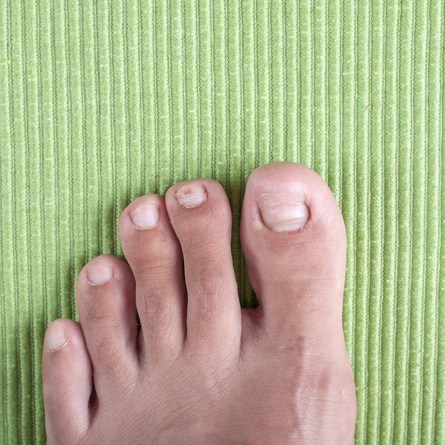 Ingrown Toenails in Hackettstown and Washington, NJ
